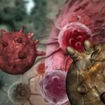 8 señales tempranas de cáncer de ovario que no deberías ignorar
