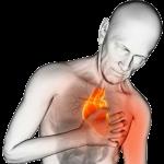 Cómo reconocer un ataque al corazón un mes antes de que ocurra