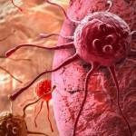 15 Sintomas comunes del cáncer que no debes ignorar